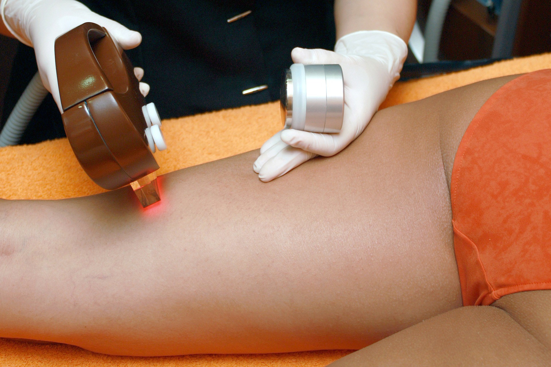 Laser Hair Removal Over Waxing
